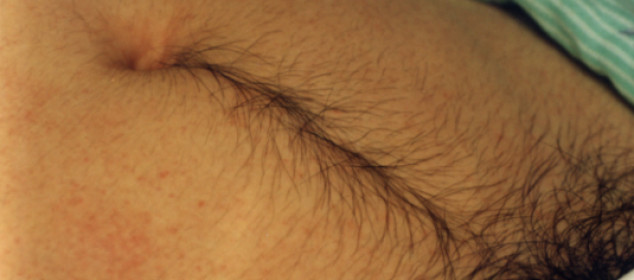 How To Get Rid Of Belly Hair Naturally
