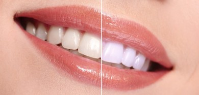 Whiten teeth with coconut oil