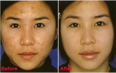 Vitamin E for acne scars before and after