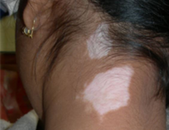 White patches on skin - back of neck
