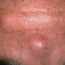 Cyst on Forehead