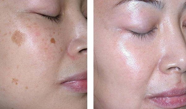 How to Get Rid of Age Spots, Before and After