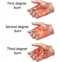 Classification of Burns