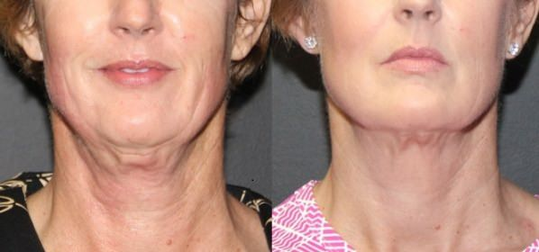 How to get rid of Sagging Neck Skin