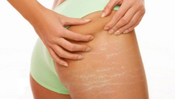 Vitamin E for Stretch Marks