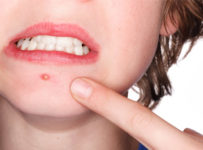 How to Reduce Pimple Swelling