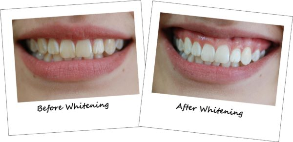 Laser Teeth Whitening- Before and After