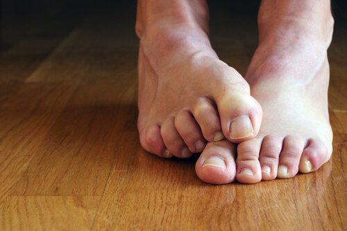 Treat foot and toe nail fungus