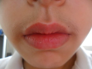 Upper lip hair