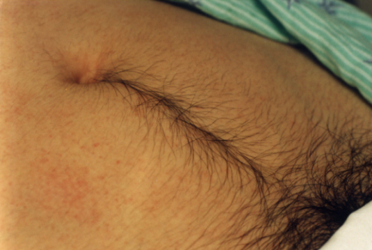 Stomach hair in women