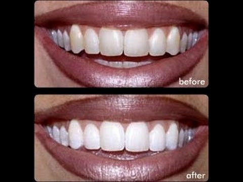 Before and After Turmeric for Teeth Whitening
