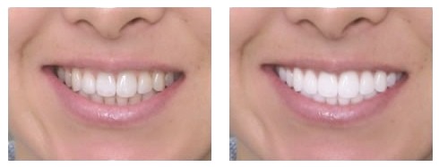 Before and After coconut oil teeth whitening