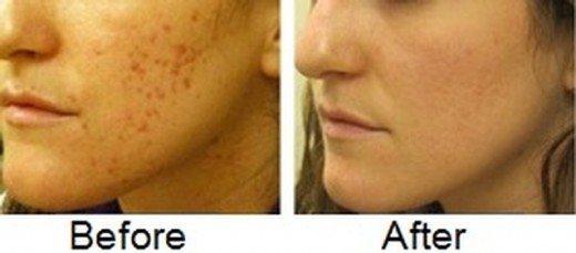 Before and After Vitamin E for Acne Scars