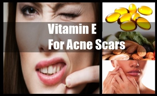 Vitamin E for Acne Scars