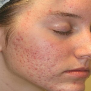 Vitamin E on Face Acne Scars