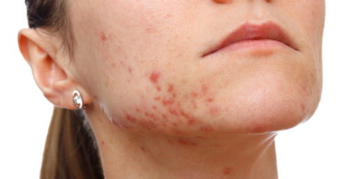 Home Remedies To Fade Acne Scars Fast