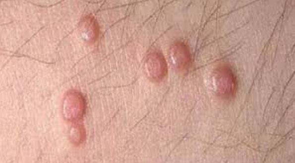 Some STDs such as genital herpes can cause blistering bumps near the inner thighs
