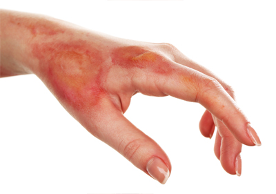 How to Stop a Burn from Hurting
