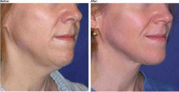 Tighten Sagging Neck Skin