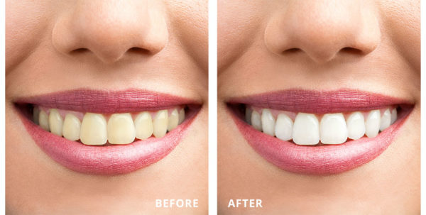 Before and After Laser Teeth Whitening