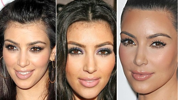 Kim Kardashian Before And After Lasering Her Baby Hairs