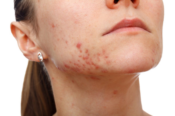 Use hydrogen peroxide to remove acne scars