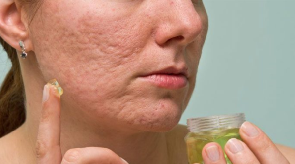 How To Remove Holes On Face Caused By Pimples Naturally