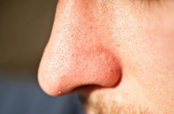 Whiteheads on Nose