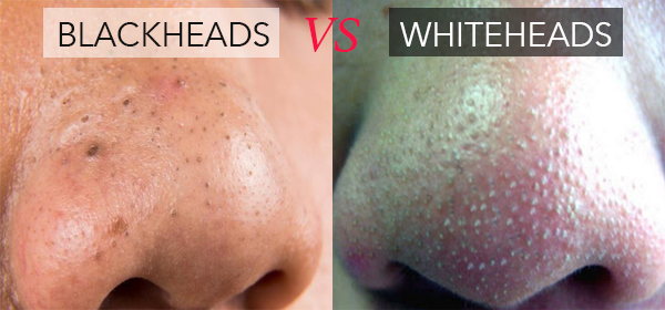 How To Remove Whiteheads From Nose Naturally At Home