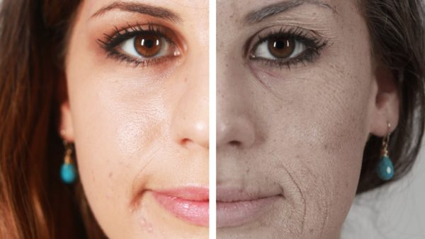 Effects of Smoking on your Skin