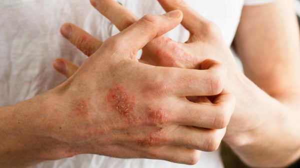 Home Remedies For Eczema Natural Face Legs Hands