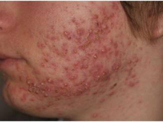 What is Nodular Acne
